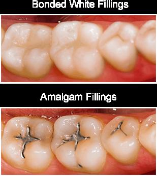 general-dentistry-filling